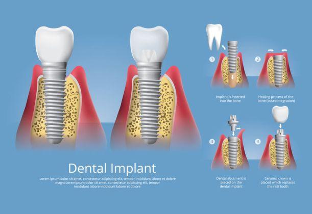 Fasi implantologia