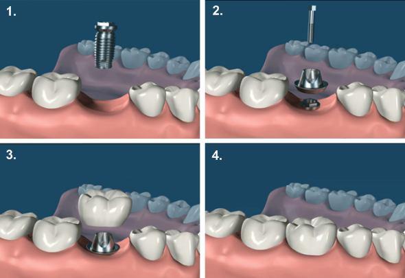 Mr. Face - Fasi implantologia